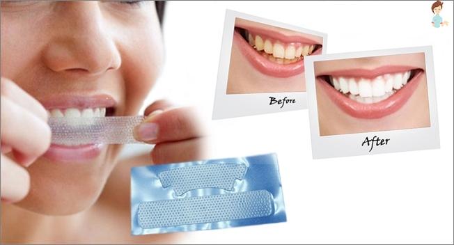 caries i tænderne