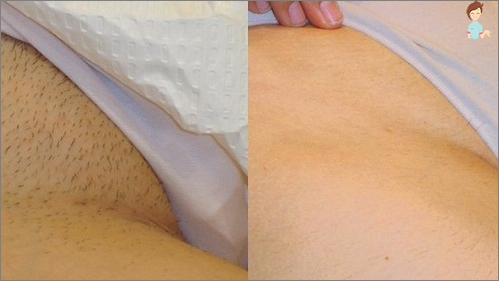 Laser hair removal - bikini zone
