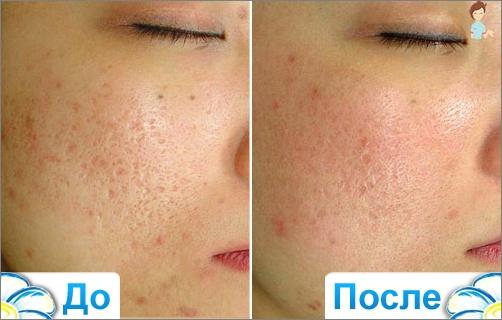 koude laser huid