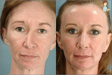 laser voor gezicht