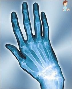 Durere în trauma încheietura mâinii