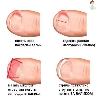 nageltrång i fingret