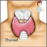 thyroiditis