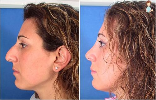 informasjon etter kosmetisk operasjon