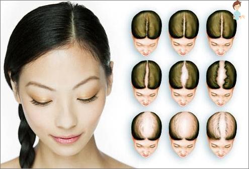androgeninė alopecija