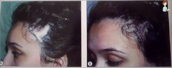 Treatment of androgenic alopecia