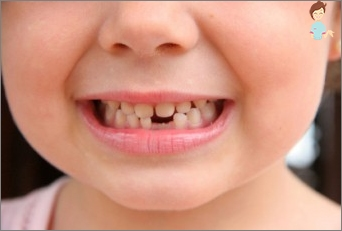 When the drop milk and permanent teeth grow?