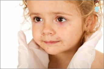 The rash can be caused by a child?