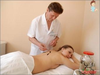 Hirudoterapija