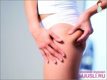 All variants of anti-cellulite creams