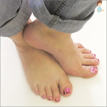 Fungus toenails
