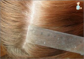 Sennep maske for hårvekst