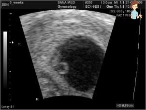 Ultragarsas, nėštumas 2-3 savaitės