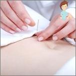 طرق التخسيس غير التقليدية - الوخز بالإبر