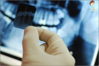 Ist es möglich, die Behandlung von Zähnen mit dem Stillen zu stillen