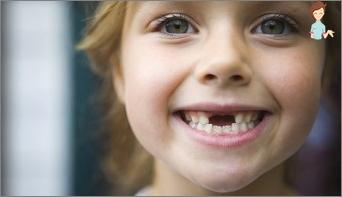 عند سقوط الحليب والأسنان المستمرة تنمو؟