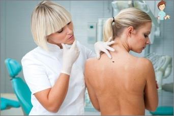 شعبية حول سرطان الجلد