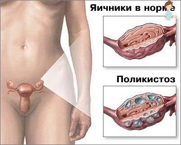 Wo soll ich im Sommer schwanger sein?